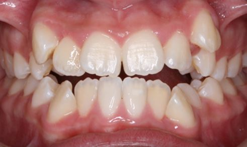How minor tooth alignment can change your smile